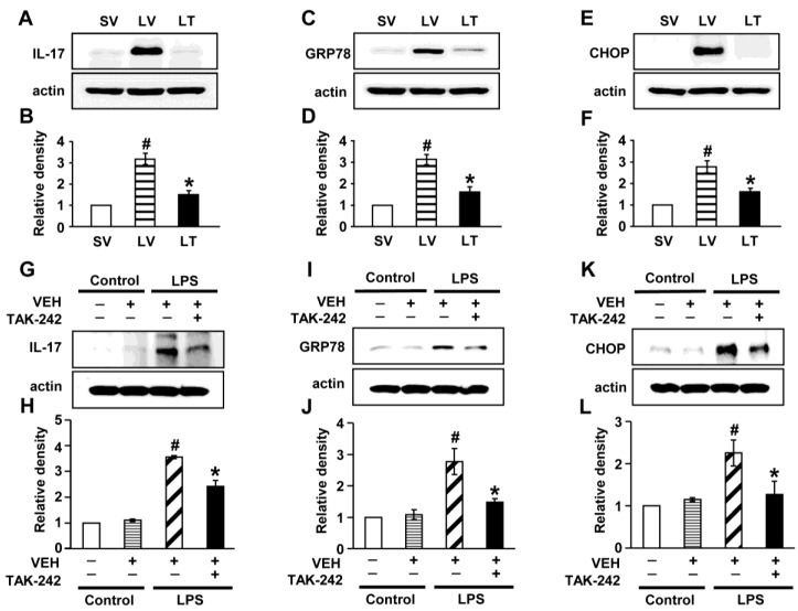 Levels of IL-17A, GRP78, and CHOP in lung tissues from LPS-instilled mice and LPS-stimulated NHBE cells. Representative immunoblots of IL-17A (A) , GRP78 (C) , and CHOP (E) in lung tissues from SV, LV, and LPS-instilled mice given intravenous injections of TAK-242 of 200 μg/mouse (LT) and densitometric analysis of IL-17A (B) , GRP78 (D) , and CHOP (F) . Sampling was performed at 48 hours after the instillation of LPS. Bars represent mean ± SEM from 5 mice/group. # P