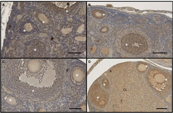 Increased expression of intra-ovarian <t>adenylyl</t> <t>cyclase</t> 3 following exposure to male-derived scent. Ovaries of 2 wild type (A, B) and 2 mutant (C, D) unisexually isolated mice, either unexposed (A, C) or exposed (B, D) to male-derived scent for 9 hours, were stained with a polyclonal antibody against adenylyl cyclase 3. Absence of estrous activity in mice not exposed to male-derived scent and presence of such activity in mice exposed to such scent were confirmed by vaginal cytology obtained just before the mice were euthanized. Stars are over the granulosa cell layers of ovarian follicles. CL: corpus luteum. Bars: 50 microns.