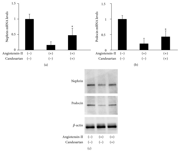 Changes in expression levels of nephrin and podocin in cultured mouse Sertoli cells, line TM4, following treatment with angiotensin-II and/or candesartan. (a) Total RNA was extracted from TM4 cells and analyzed for nephrin mRNA levels by real-time RT-PCR. Each column represents the mean value with standard deviation. ∗ differs from TM4 cells treated with cisplatin alone ( P