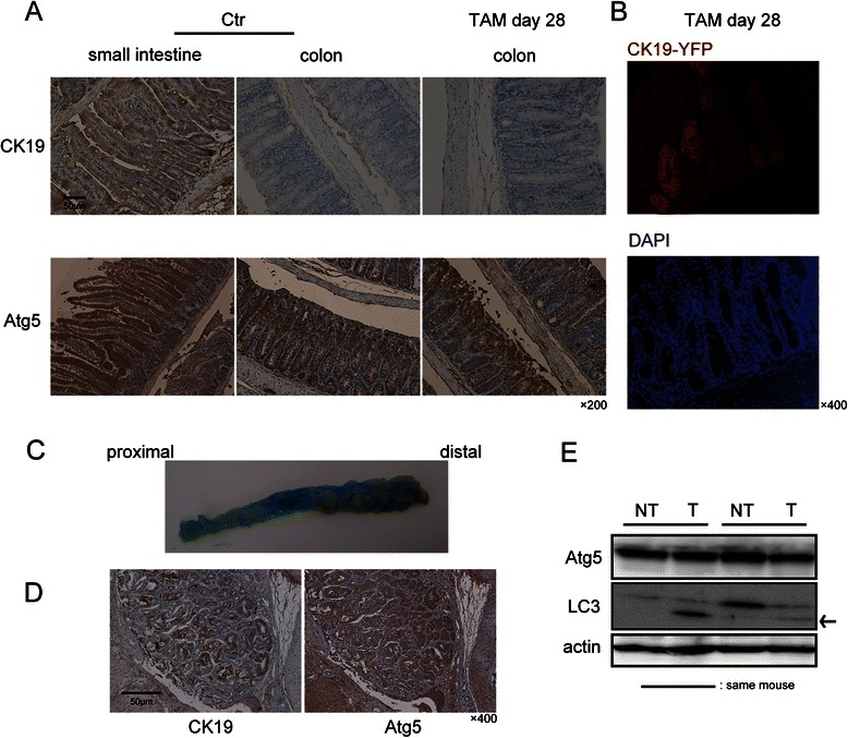 CK19 and Atg5 expression in normal colonic mucosa and azoxymethane/dextran sodium sulphate (AOM/DSS)-derived colon tumors. a Representative immunohistochemical images of the small intestine and colon in Atg5 flox/flox /K19 CreERT mice before and 28 days after tamoxifen (TAM) injection. Scale bar, 50 μm. Original magnification, ×200. b Immunofluorescence analysis of the colon in K19 CreERT / ROSA - YFP mice 28 days after TAM injection; YFP (red) and DAPI (blue) fluorescent staining. Original magnification, ×400. c Typical macroscopic examples of colorectal tumors induced by AOM/DSS in K19 CreERT mice before TAM injection. d Typical immunohistochemical images of CK19 and Atg5 staining in AOM/DSS-derived colon tumors in K19 CreERT mice before TAM injection. Scale bar, 50 μm. Original magnification, ×400. e Immunoblot analysis of Atg5 and LC3 expression in AOM/DSS-derived tumor (T) and non-tumor colon mucosa (NT) in the same K19 CreERT mouse before TAM injection. Actin was used as an internal control. The arrow indicates LC3-II