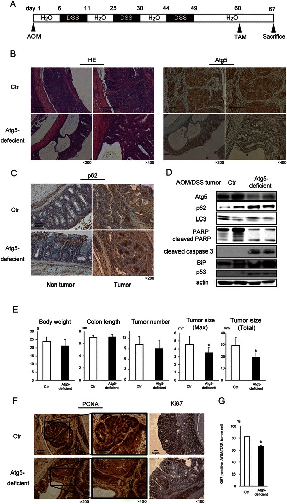Autophagic inhibition in azoxymethane/dextran sodium sulfate (AOM/DSS)-derived mice colon tumors using the CreERT system. a Schematic representation of Atg5 genetic inhibition by tamoxifen (TAM) in AOM/DSS-induced colon tumors. b Representative histopathological images of staining for hematoxylin and eosin (HE) or Atg5 in AOM/DSS-derived colon tumors in Atg5 flox/flox /K19 CreERT+ ( Atg5- deficient) and Atg5 flox/flox (Ctr) mice 7 days after TAM injection. Scale bars, 50 μm. Original magnification, ×200/400. c Representative immunohistochemical images of p62 staining in the non-tumor colon mucosa and AOM/DSS-derived colon tumors in Atg5- deficient mice and Ctr mice. Scale bar, 50 μm. Original magnification, ×200. d Representative immunoblot analysis image of the indicated proteins from AOM/DSS-derived colon tumors in Atg5- deficient mice and Ctr mice (two different mice each). e Body weight, colon length, tumor number, and tumor size were determined in Ctr mice ( n = 9) and Atg5- deficient mice ( n = 11). Data shown are means and SEM. *; p