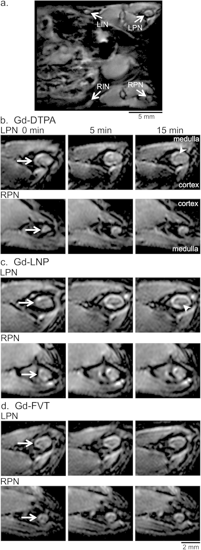 Gd-LNP contrast media detects increased lymph drainage through the tumor-draining popliteal lymph node. ( a ) Full field-of-view oblique MIP image, illustrating the in vivo locations of the left and right popliteal (LPN and RPN, respectively) and inguinal LNs (LIN and RIN) that were analyzed in the study. The MIP was generated from 5 min post- GD-LNP images, in the same animal shown in part c. ( b ) Representative single slice images of LPN and RPN (arrows) from pre-contrast (0 min) and from 5 and 15 minute post-contrast scans after Gd-DTPA injection demonstrate modest LN enhancement after contrast injection. The orientation of the cortex and medulla is indicated. Arrowhead indicates the dark artifacts arising after contrast agent injection. ( c ) Single slice images of popliteal LNs after Gd-LNP injection show higher uptake into the LPN at 5 and 15 min. ( d ) Single slice images of popliteal LNs after Gd-FVT injection show uptake into the LPN and RPN at 5 min after contrast agent injection. Scale bars are indicated.
