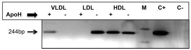 ApoH captures HCV/RNA-containing particles, from low-density and high-density plasma fractions. A pool of 10 HCV/RNA-positive untreated patients was separated into three fractions, respectively corresponding to the floating densities of VLDL, LDL and HDL. One hundred μL of VLDL, 10 μL of LDL and 1 μL of HDL were respectively incubated with 10 μL of ApoH-coated nanomagnetic beads and HCV/RNA was submitted to a home-made HCV RT-PCR. Lanes M, C+ and C- respectively correspond to the DNA molecular mass marker (1 Kb Plus DNA Ladder), the positive control (plasmid pGEM-T easy with an HCV/PCR-insert) and negative PCR control.