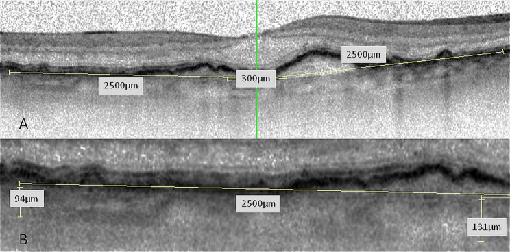 (A) Optical coherence tomography <t>(OCT)</t> scan through the fovea; five locations (subfoveal, 300 µm and 2500 µm nasal and temporal to the fovea) were measured. (B) CT-measurements were performed by two independent readers. The imaging software of <t>Spectralis</t> OCT includes contrast enhancement, copying of overlays, side by side comparison of different OCT scans and flickering of two scans allowing for precise measurements.