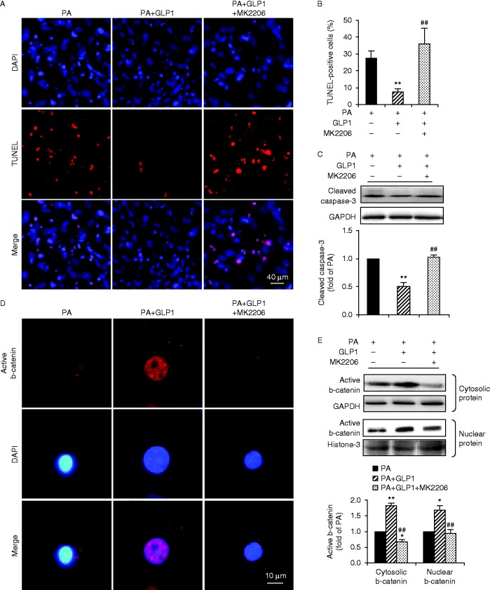 GLP1-mediated anti-apoptotic effects were abolished when Akt was inhibited. Cultured cardiomyocytes were incubated with PA (400 μM) for 24 h in the absence or presence of GLP1 (25 nM) alone, or in combination of GLP1 (25 nM) with an Akt inhibitor MK2206 (50 nM). (A) Apoptotic cardiomyocytes were examined by TUNEL staining (red, TUNEL and blue, DAPI; scale bar, 50 μm). (B) Numbers of apoptotic cells were quantified and expressed as the percentage of TUNEL-positive to DAPI-positive cells. (C) Levels of cleaved caspase-3 were analyzed by western blot and quantified by densitometry. Distribution of active b-catenin in cardiomyocytes was determined by immunostainning (red, b-catenin and blue, DAPI; scale bar, 10 μm) (D) and levels of cytosolic and nuclear b-catenin were further examined by western blot (E). Intensities were quantified and normalized against the level of GAPDH or histone-3 and expressed as fold changes of protein abundance under PA stimulus. Data are means± s.e.m . of three independent experiments. * P