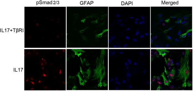 Inhibition of TGFβ signaling blocks IL17A-stimulated co-expression of phospho-Smad2/3 (pSmad) with GFAP in mouse primary astrocytes. The administration of TGFβ receptor inhibitor (TβRI) reduced IL17A-induced pSmad 2/3 co-expression with GFAP in astrocytes. Double immunofluorescence staining showed that relative to IL17A (25 ng/ml) alone, pSmad 2/3 (red) co-localization with GFAP (green) in astrocytes following IL17A in combination with TβRI (5 μM) treatment was reduced. Magnification × 600.