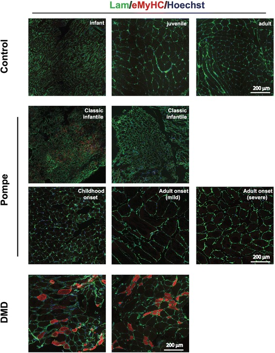 Impaired muscle regeneration in Pompe patients. Immunofluorescent analysis of embryonic myosin heavy chain (eMyHC in red) expression in to detect actively regenerating myofibers. Muscle sections were co-stained for Laminin ( in green ) to visualize the fiber outline, nuclei were stained with Hoechst ( in blue ). Representative examples are shown. Two examples from classic infantile Pompe patients and DMD patients are derived from different patients