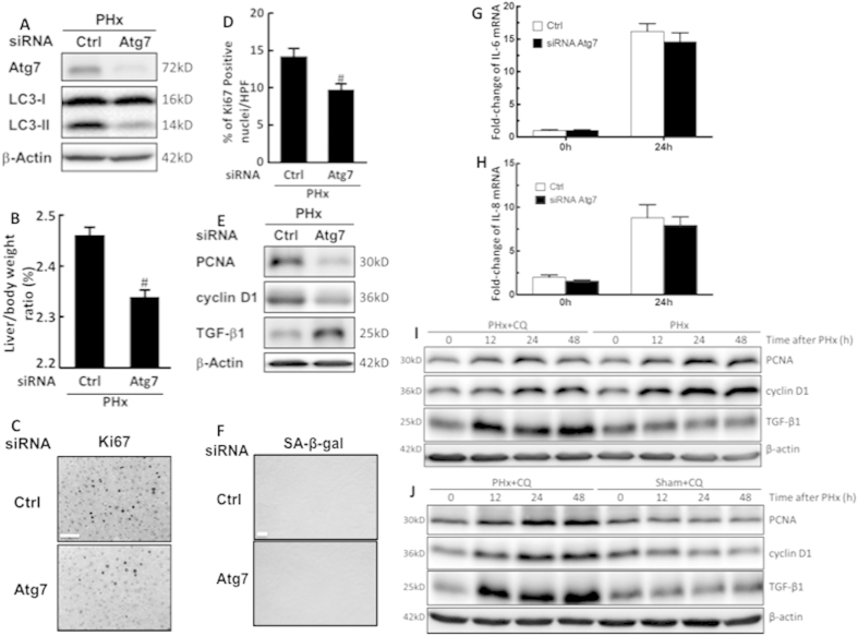 Inhibition of autophagy reduced liver growth and hepatocyte proliferation in the early phase of liver regeneration after PHx. Wild-type mice were given control or Atg7-specific siRNA for 48 h before treatment with PHx. Liver tissues were harvested at 24 h after surgery and tissue extracts were analyzed for Atg7, LC3-II, and β-actin by Western blotting ( A ). The liver-to-body-weight ratios were calculated ( B ). Representative immunohistochemical staining of Ki67 is shown. Scale bar, 50 μm ( C ). The percentage of Ki67-positive nuclei in hepatocytes was counted in low-power field (200X) in 15 random sections from 3 different mice ( D ). Tissue extracts were analyzed for PCNA, cyclin D1, TGF-β1, and β-actin by Western blotting ( E ). Immunohistochemical staining of senescence-associated β-galactosidase (SA-β-gal) in hepatocytes. Scale bar, 100 μm ( F ). Fold-changes in IL-6 ( G ) and IL-8 ( H ) mRNA expression at 24 h after 70% PHx. Wild-type mice were intraperitoneally injected with vehicle (Veh) or chloroquine (CQ) at 0.5 h before PHx or the sham operation and then once per day until 48 h. Liver tissues were harvested at 0–48 h after surgery and tissue extracts were analyzed for PCNA, cyclin D1, TGF-β1, and β-actin by Western blotting ( I,J ). The values are shown as the mean ± SD in the bar graph and compared using Student's t test. #P