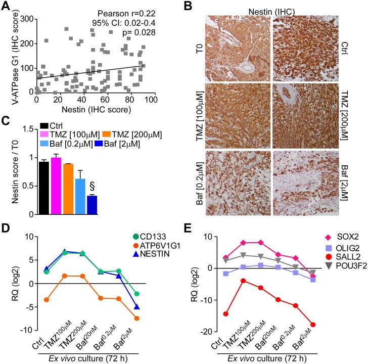 Bafilomycin A1 reduces stem cell factors expression in GBM organ cultures A. Nestin immunoreactivity was analyzed in GBMs of the tissue micro-arrays and correlated to V-ATPase G1 expression in the same samples. B. , C. Short term GBM organ cultures were treated as in Figure 6 . Nestin presence was assessed after 72 hours and quantified relative to uncultured samples (T0). Original magnification x400. Bars, mean±SEM. §, p = 0.018 by Mann-Whitney U test. D. , E. The stem cell markers CD133, NESTIN or ATP6V1G1 ( D. ) and the neurodevelopmental transcription factors SOX2, OLIG2, SALL2 and POU3F2 ( E. ) were analyzed at gene expression level by qPCR in GBM organ cultures treated as indicated. Each point represents the mean of three cultures. RQ, mRNA Relative Quantity.