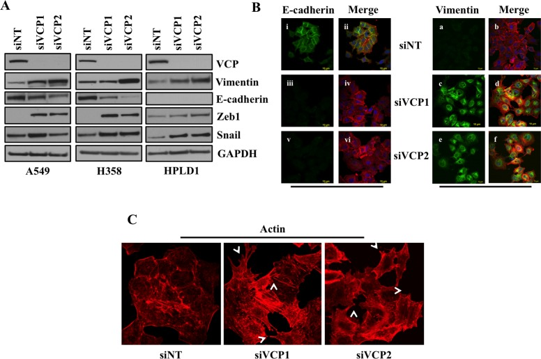 Loss of VCP induces EMT A. 72 hours after transfection of A549, H358 or immortalized human bronchiolar HPLD-1 cells with siRNA against VCP or non-targeting cell lysates were prepared and western blot analysis of EMT markers Vimentin and E-cadherin was performed. B. Fluorescence staining for E-cadherin and Vimentin in A549 cells. After 24 hrs of transfection either with non-targeting siRNA (siNT) or with siRNAs targeting VCP (siVCP1 or siVCP2) cells were trypsinized and plated on chamber slides and stained for EMT markers. i, iii and v: E-cadherin was detected using <t>Alexa</t> <t>Fluor</t> 488 goat anti-rabbit <t>IgG</t> (green). ii, iv and vi: overlay of respective E-cadherin and F-actin (Alexa Fluor 568 Phalloidin; red) staining with DAPI counter stain. a, c and e: Vimentin was detected using Alexa Fluor 488 goat anti-rabbit IgG (green). b, d and f: overlay of respective Vimentin and F-actin (Alexa Fluor 568 Phalloidin; red) staining with DAPI counter stain. C. A549 cells were prepared as described in B and F-actin was detected with Alexa Fluor 568 Phalloidin (red). Re-organization of actin cytoskeleton through destruction and cellular protrusion formation is indicated by arrows.