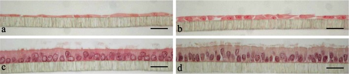 HE staining of primary porcine oviduct epithelial cells (POEC) cultured in media M1 ( a ), M2 ( b ), M3 ( c ) and M4 ( d ), respectively, for 6w. M1: Ham's F12 + 10 % charcoal-stripped <t>FBS;</t> M2: M1 enriched with corresponding <t>3T3-conditioned</t> medium at a ratio of 2:1(V: V); M3: Ham's F12 + 10 % FBS; M4: M3 enriched with corresponding 3T3-conditioned medium at a ratio of 2:1(V: V); magnification ×400, scale bars 20 μm