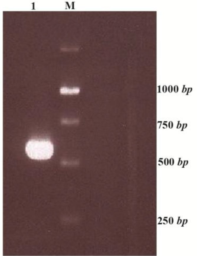 ctla-4 gene PCR product with Pfu polymerase enzyme M: 1 kb ladder 1: PCR product using specific primers (CTLA4- FOR / CTLA4-fuse).
