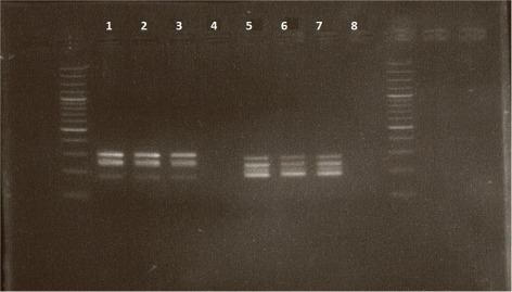 Picture of electrophoresis gel of amplification products obtained with 3 DNA samples and 1 negative control, for the quintuplex (samples 1-4) and quadruplex (samples 5-8) PCR, respectively