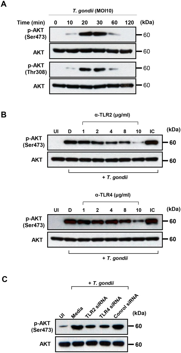 Regulation of AKT activation in T . gondii -infected THP-1 cells upon treatment with TLR2 or TLR4-specific antibodies or siRNA. (A) THP-1 cells were infected with T . gondii at MOI 10 for the indicated time points, cells were collected, and the levels of phospho-AKT (Ser473, Thr308) and total AKT were measured by western blot. (B) THP-1 cells were preincubated with the indicated amounts of anti-TLR2, anti-TLR4, or isotype-matched control (IC) 10 (μg/mL) and infected with T . gondii at MOI 10 for 30 min. Cells were collected, and the levels of phospho-AKT (Ser473) and total AKT were measured. (C) THP-1 cells were transfected with siRNA against TLR2 or TLR4 (or control siRNA) for 48 h and infected with T . gondii at MOI 10 for 30 min. Cells were collected, and the levels of phospho-AKT (Ser473) and total AKT were measured. A representative result of three independent replicates is shown.