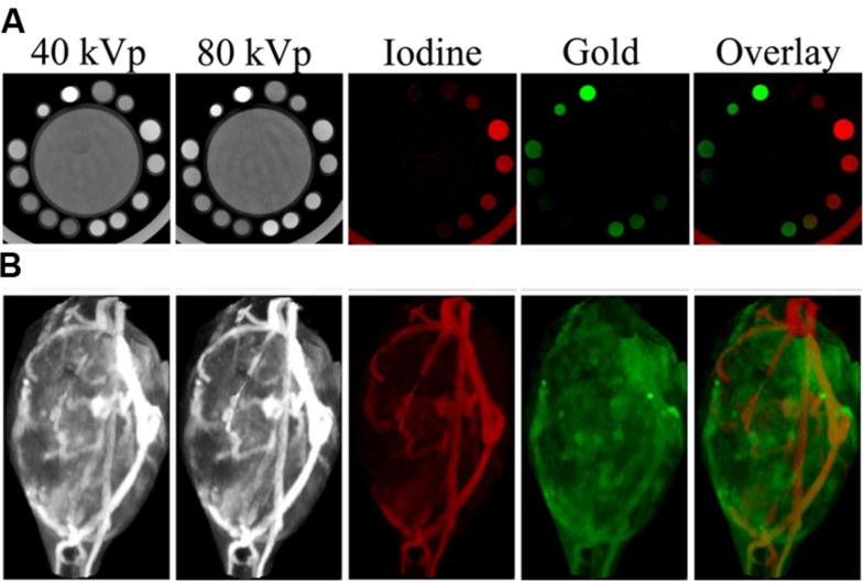 Dual energy micro-CT material decomposition. (A) , In vitro phantom consisting of a large tube of water surrounded by vials containing gold, iodine, or a mixture of the two. (B) , In vivo imaging of gold <t>nanoparticles</t> and iodine-containing liposomes within a mouse soft tissue sarcoma. The iodine (shown in red) and gold (shown in green) maps are the result of dual energy decomposition. In both cases, the decomposition was able to successfully differentiate the signals from the gold and iodine contrast agents.