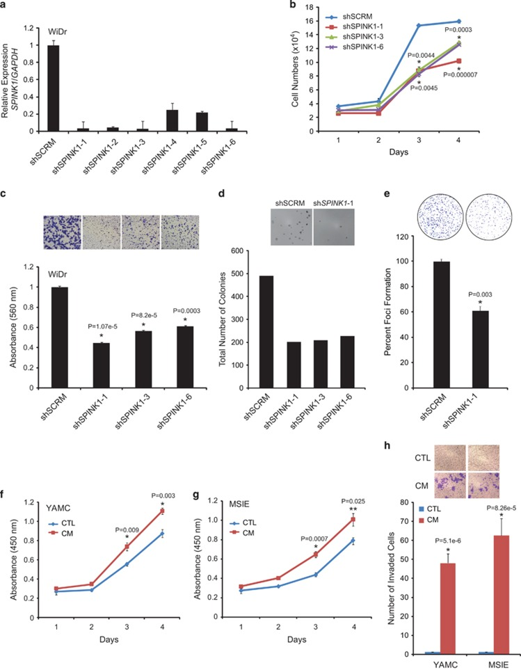 Knockdown of SPINK1 leads to decrease in cell proliferation, invasion and anchorage-independent growth. ( a ) SPINK1 expression in SPINK1 knockdown WiDr cells (shSPINK1-1, shSPINK1-2, shSPINK1-3, shSPINK1-4, shSPINK1-5 and shSPINK1-6) as compared with shSCRM (Scrambled) WiDr cells. ( b ) Cell proliferation assay using sh SPINK1 -1, shSPINK1-3, shSPINK1-6 and shSCRM WiDr cells at the indicated time points. ( c ) Boyden chamber matrigel invasion assay using shSPINK1-1, shSPINK1-3, shSPINK1-6 and shSCRM WiDr cells. ( d ) Same experimental cell lines as c , except soft agar assay for anchorage-independent growth. ( e ) Foci formation assay using shSPINK1-1 and shSCRM WiDr cells. ( f ) SPINK1-enriched conditioned media (CM) stimulated cell proliferation in YAMC cells measured by colorimetric water-soluble tetrazolium (WST) assay at the indicated time points. ( g ) Same as f , except MSIE cells were used. ( h ) Cell invasion measured by Boyden chamber matrigel invasion assay using YAMC and MSIE cells. Error bars represent mean±s.e.m. P -values derived from two-sided Student's t -test, * P