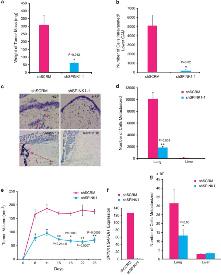 Knockdown of SPINK1 reduces cell intravasation, tumor growth and the lung metastases. ( a ) Mean weight of the tumor mass collected from pre-fertilized eggs ( n =8) implanted with shSCRM and shSPINK1-1 cells. ( b ) Genomic DNA extracted from the lower CAM was used to measure the intravasated human cells by qPCR using human-specific Alu primers. ( c ) Upper CAM harvested 3 days post engraftment of the shSPINK1-1 and shSCRM tumor cells, and representative images show the frozen sections stained for hematoxylin and eosin (top panel) and human-specific cytokeratin-18 by immunohistochemistry (bottom panel). ( d ) Genomic DNA extracted from the lungs and liver of the chick embryo was used to measure the intravasated shSCRM and shSPINK1-1 cells by qPCR using human-specific Alu primers. ( e ) Mean tumor growth in NOD/SCID mice subcutaneously implanted with shSPINK1-1 or shSCRM cells. Tumor growth was monitored weekly up to 4 weeks. ( f ) Relative SPINK1 expression measured by qPCR in the xenografts excised from shSPINK1-1 and shSCRM control groups. ( g ) Genomic DNA extracted from the lung and liver of the tumor-bearing mice was used to measure the intravasated shSCRM and shSPINK1-1 cells by qPCR using human-specific Alu primers. Error bars represent mean±s.e.m. P -values derived from two-sided Student's t -test, * P