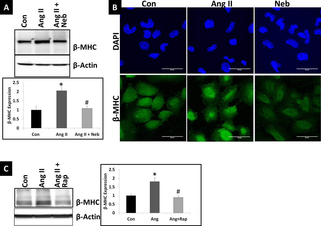 Ang II increases while Neb and Rap suppress the Ang II-induced increase in miR-208a effector <t>β-MHC</t> (A) Representative autoradiogram and densitometric analysis using Quantity One software (graph) after Western blotting of untreated and treated HL-1 cell lysates (treated with Ang II or Ang II+Neb) and probing with anti- β-MHC antibody. (B) Representative images from immunofluorescence analysis of untreated and treated HL-1 cells. (C) Representative autoradiogram and densitometric analysis using Quantity One software (graph) after Western blotting of HL-1 cell lysates (Untreated (Con) or treated with Ang II or Ang II+Neb) and probing with anti- β-MHC antibody. Treatments with Ang II (100nM:12hrs) Neb (1µM:12 hrs)) or Rap (10nM: 12hrs) were similar to those performed for the data shown in Fig. 1 . Treatments were performed in triplicate. Neb- and Rap-treatment suppressed Ang II-induced increase in β-MHC (A, C). Immunofluorescence staining with anti- β-MHC antibody and nuclear stain DAPI indicated that in individual cells Ang II increased and Neb suppressed β-MHC (B). *p