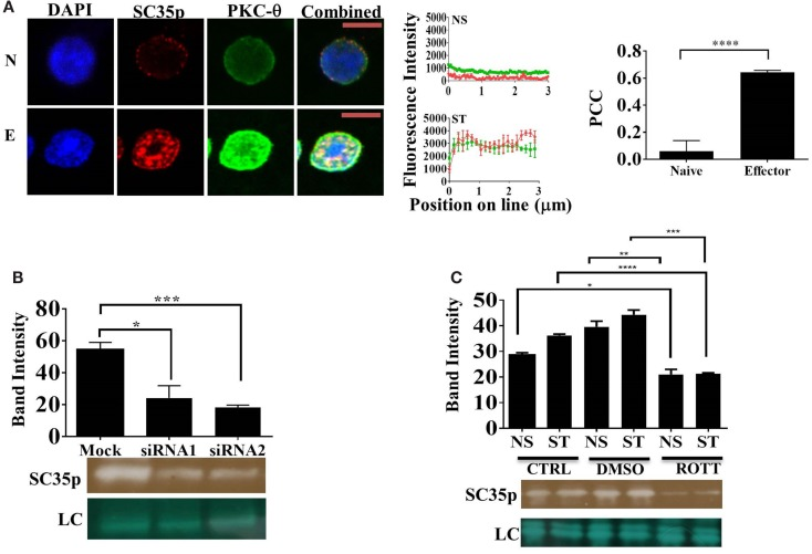 """Interplay between PKC- θ and SC35 phosphorylation . (A) Naive OT-1 CD8 + CD44 lo/intermediate T-cells or influenza-specific effector OT-1 CD8 + T-cells were fixed and probed with a primary mouse antibody to a phospho-epitope of SC35 and primary rabbit antibody to PKC-θ followed by visualization with a secondary goat antibody to mouse immunoglobulins conjugated to Alexa-Fluor 568 and secondary antibodies to rabbit immunoglobulins conjugated to Alexa-Fluor 488, respectively. Confocal laser scanning microscopy was used to measure expression of SC35 and PKC-θ. Representative images for each stimulation point are shown with a 5-μm scale bar. Channels were overlaid to examine colocalization of the antibody targets. Pearson's colocalization coefficient (PCC) and mean fluorescent intensity line scans were calculated with Fiji-ImageJ as described in the section """" Materials and Methods ."""" Data represent the mean ± SEM, n = 20 for each dataset with significant differences between datasets indicated. Red = SC35; green = PKC-θ; and yellow = visual overlap between the fluorescence signals. (B) Cell lysates of primary human CD4 + cells were untreated (mock) or treated with PKC-θ siRNA1 (Life Technologies) or siRNA2 (Santa Cruz). Effect on SC35 was analyzed by immunoblotting with a mouse raised primary antibody to a phospho-epitope of SC35, measuring band intensity with Fiji-ImageJ for each sample. A representative image of SC35 labeling for three separate experiments ( n = 3) is displayed (labeled SC35), with the mean intensity plotted with significant differences displayed for each treatment along with a representative loading control (LC) as described in the section """" Materials and Methods ."""" The effect of rottlerin treatment (C) , a PKC-θ-specific kinase inhibitor, on SC35 phosphorylation was also examined by immunoblotting as described above. A representative loading control (LC) is shown along with a representative SC35p-probed blot for three separate experiments ( n = 3). Th"""