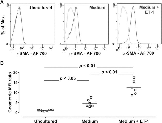 Analytical validity of the assay demonstrated by analysis of the response of sorted viable CD45 + [CD3/CD19/CD20/CRTH2] − CD16 − CD115 − CD11b + CD34 + fibrocytes to stimulation with endothelin-1 (ET-1). (A) Representative flow cytometry analysis of the expression of intracellular α-smooth muscle actin (α-SMA) in freshly sorted and uncultured cells and in cells incubated for 6 days in culture medium alone or in culture medium supplemented with1 ng/ml ET-1. The black lines indicate staining with a specific anti α-SMA monoclonal antibody and the gray lines show nonspecific staining with the isotype control. (B) Quantitative analysis of the expression of intracellular α-SMA. The geometric mean fluorescence intensity (MFI) for α-SMA was divided by the corresponding value obtained with the isotype control. The graphs show individual geometric MFI ratio values obtained with the cells from 3 patients with controlled asthma (squares) and 3 patients with treatment-resistant asthma (circles) under each experimental condition. The horizontal lines indicate the means. AF, Alexa Fluor.
