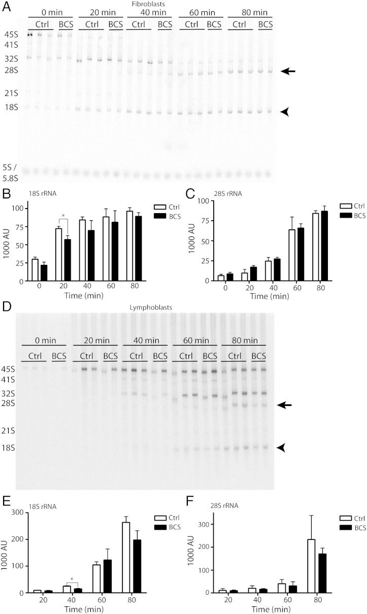 Ribosomal RNA processing is delayed in BCS patient cells. (A) In fibroblasts, nascent rRNA was metabolically labeled using (methyl- 3 H) methionine for 30 min, and RNA was isolated at twenty minute intervals to follow the processing rate of the large 45S rRNA precursor to the mature 18S (arrowhead) and 28S species (arrow). Equal counts were separated on a 0.7% agarose gel, and transferred to a positively-charged nylon membrane. The membrane was exposed to a phosphor storage screen, which was scanned using a phosphorimager. The precursor 45S rRNA, the 28S and 18S mature species, and the intermediates are indicated on the left side of the diagram. A representative image of three independent experiments is shown. (B, C) The intensity of each band in (A) was quantified using Image Lab software. The graphs indicate the mean density in arbitrary units of the 18S (B) and 28S rRNA (C) bands at each time point, and the error bars represent standard deviation. For this experiment, the average of three control cell lines and two BCS cell lines are shown. The 18S rRNA level was significantly reduced in BCS cells at the 20 minute time point (*p = 0.0287). (D) A representative image of an rRNA processing experiment in lymphoblasts. The experiment was performed essentially as in (A), except the rRNA was labeled with 32 P i for a twenty minute pulse. Following gel electrophoresis to separate the RNA species, the gel was dried and directly exposed to a phosphor storage screen. (E) and (F) show the intensity of each band. The 18S rRNA was significantly reduced in BCS cells at the 40 minute time point (*p = 0.0292).