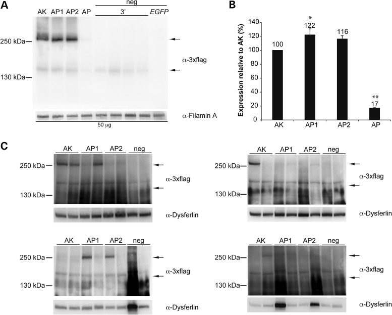 Efficient ABCA4 protein expression using the AK, AP1 and AP2 regions of homology. Representative Western blot analysis of ( A ) HEK293 cells (50 micrograms/lane) infected with dual AAV2/2 hybrid CMV- ABCA4 vectors or ( C ) C57BL/6 retinas (whole retinal lysates) 1-month post-injection with dual AAV2/8 hybrid GRK1- ABCA4 vectors (dose of each vector/eye: 1.9 × 10 9 GC). The upper arrow indicates full-length proteins, the lower arrow indicates truncated proteins from the 3′-half vector. Since no truncated proteins can be detected in the mouse retina ( 10 ), the lower arrow in (C) points to the level of truncated proteins present in a lysate of infected cells which has been loaded on the same gel as positive control. The molecular weight ladder is depicted on the left. ( B ) Quantification of ABCA4 protein bands from Western blot analysis in (A). The intensity of the ABCA4 bands in (A) was divided by the intensity of the Filamin A bands. The histograms show the expression of proteins as a percentage relative to dual AAV hybrid AK vectors, the mean value is depicted above the corresponding bar. Values are represented as: mean ± s.e.m. * p ANOVA ≤ 0.05, the asterisk indicates significant differences with AK. ** p ANOVA