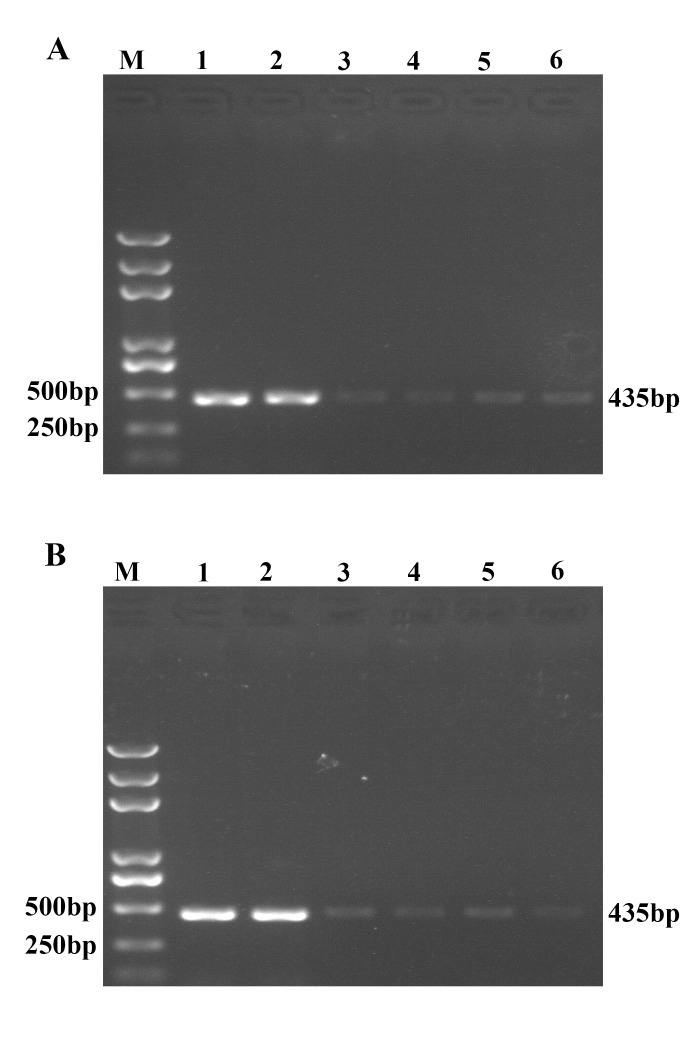 Comparison of different probes-functionalized MMPs and oligos-functionalized AuNPs. (A) Functional magnetic microparticles MMP-p1, -p2, -p3, -p4, -p5 and -p6 were incubated with RNA of TGEV in hybridization buffer at 40°C for 30 minutes, followed by washing and magnetic separation. Then the MMP-RNA complexes were reverse transcribed into cDNA, which were detected by TGEV-specific RT-PCR. M: Trans 2K Plus DNA Marker; 1: MMP1; 2: MMP2; 3: MMP3; 4: MMP4; 5: MMP5; 6: MMP6. (B) TGEV RNA was incubated with oligo1, oligo2, oligo3, oligo4, oligo5 or oligo6 functionalized Au-NPs at 50°C for 40 min. Then the complexes were washed and precipitated by centrifugation, followed by reverse transcription and TGEV specific RT-PCR detection. M: Trans 2K Plus DNA Marker; 1: oligo1; 2: oligo2; 3: oligo3; 4: oligo4; 5: oligo5; 6: oligo6.