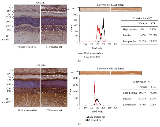 PRMT1 and PRMT4 expression is increased in the RPE layer of streptozotocin-treated rats. Eyeballs were enucleated from vehicle-treated and STZ-treated rats and cryosections were prepared. (a, b) PRMT1 (a) and PRMT4 (b) expressions were measured by immunohistochemistry analysis (C: choroid, RPE: retinal pigment epithelium, PL: photoreceptor layer, OLM: outer limiting membrane, ONL: outer nuclear layer, OPL: outer plexiform layer, INL: inner nuclear layer, IPL: inner plexiform layer, and GCL: ganglion-cell layer). Representative images were from at least three independent experiments. To quantify the DAB signaling, semiautomated analysis protocol was performed as described in Section 2 .