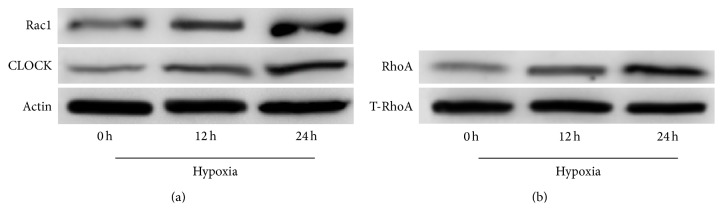 Effect of hypoxia over time on protein expression levels of hCLOCK and RhoA in HUVECs. (a) Western blot analysis was performed to evaluate Rac1 and CLOCK protein expression levels in HUVECs exposed to a hypoxic environment. Expression levels are measured at 0, 12, and 24 hours, normalized to  β -actin control. (b) RhoA activation assay and Western blot analysis were performed to measure protein expression levels of activated GTPase-bound RhoA in HUVECs exposed to a hypoxic environment. Expression levels are measured at 0, 12, and 24 hours, normalized to total cellular RhoA.