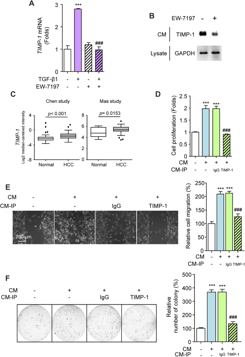Secreted TIMP-1 Mediates Crosstalk between HSC and HCC Cells. ( A ) TIMP-1 mRNA levels in LX-2 cells. Cells were treated with EW-7197 (1 μM) in the presence or absence of TGF-β1 (2 ng/ml) for 24 h. HPRT was used as a reference. ( B ) TIMP-1 protein levels in CM. The GADPH level in an aliquot of total cell lysate was used as a reference. ( C ) mRNA expression levels of TIMP-1 in HCC patients from the Chen and Mas dataset from Oncomine (www.oncomine.com). ( D ) Effects of TIMP-1 on the proliferation of SK-HEP1 cells. Cells were treated with CM for 72 h. ( E ) Representative images (left) and densitometric analysis (right) of wound-healing assay of SK-HEP1 cells. Cells were treated with CM for 30 h. Scale bars: 200 μm. ( F ) Representative images (left) and densitometric analysis (right) of soft agar assay of SK-HEP1 cells. Cells were treated with CM for 24 h. After treatment, the cells were counted and placed in soft agar for colony assay to determine cell survival. *** p