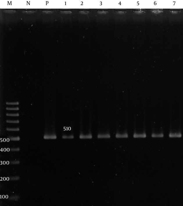 Polymerase Chain Reaction Amplification of the adeA Gene of the A. baumannii Isolates Lane M, 100 bp DNA size marker; Lane P, A. baumannii ATCC19606 positive control; Lane N, negative control; Lane 1 - 7, adeA gene positive isolate.