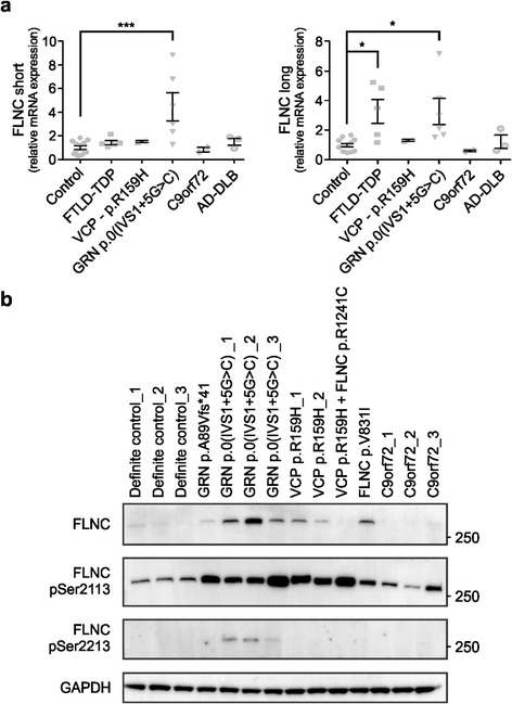Analysis of FLNC expression in FTD patients at transcript and protein level. a qRT-PCR analysis showed significantly increased levels of both the short and long isoform of FLNC in the frontal cortex of FTLD-TDP patients with GRN haploinsufficiency. The long isoform was also significantly increased in FTLD-TDP patients without a known mutation in causal FTD-ALS genes. b Increased expression levels of FLNC were confirmed on protein level using immunoblot analysis. In contrast to transcript levels, FLNC was also upregulated in VCP and FLNC variation carriers. Elevated phosphorylated FLNC levels at serines 2113 and 2213 (pSer 2113 and pSer 2213 ) were identified to a variable extent in GRN and VCP mutation carriers compared to controls. * P