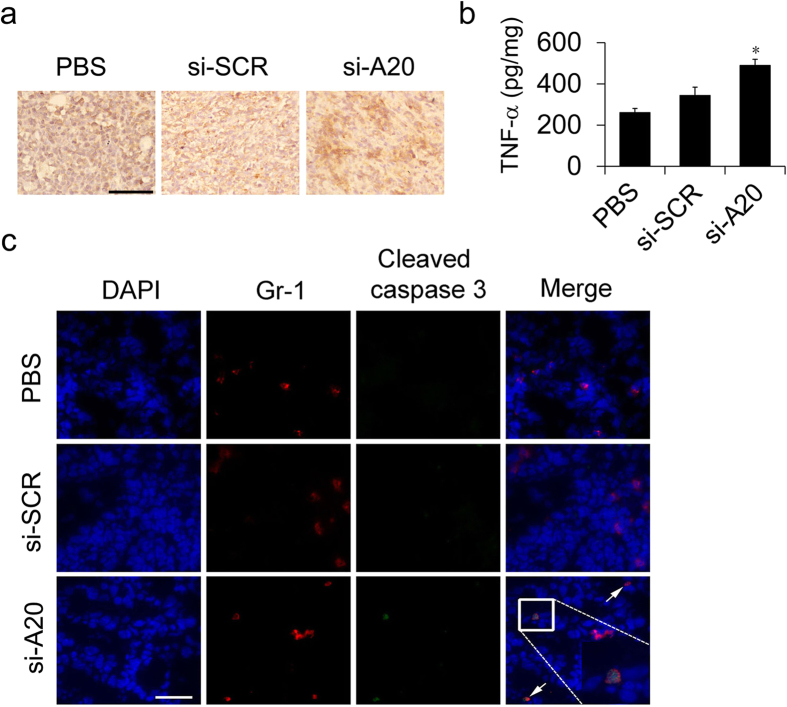 Si-A20 treatment induces the apoptosis of MDSCs in vivo . ( a , b ) Immunohistochemical and ELISA analysis for the expression of TNF-α in tumor in mice treated with PBS, si-SCR and si-A20 (n = 3). Scale bar 100 μm. ( c ) The expression of cleaved caspase-3 in tumor sections in si-A20 treated mice. Tissues were stained with DAPI (blue), antibodies to Gr1 (Alexa-595) and cleaved caspase-3 (FITC) and analyzed by confocal microscopy, Two independent experiments were performed ( n = 5). Scale bar 50 μm. Data were representative of two independent experiments. Data represent means ± SD. * p
