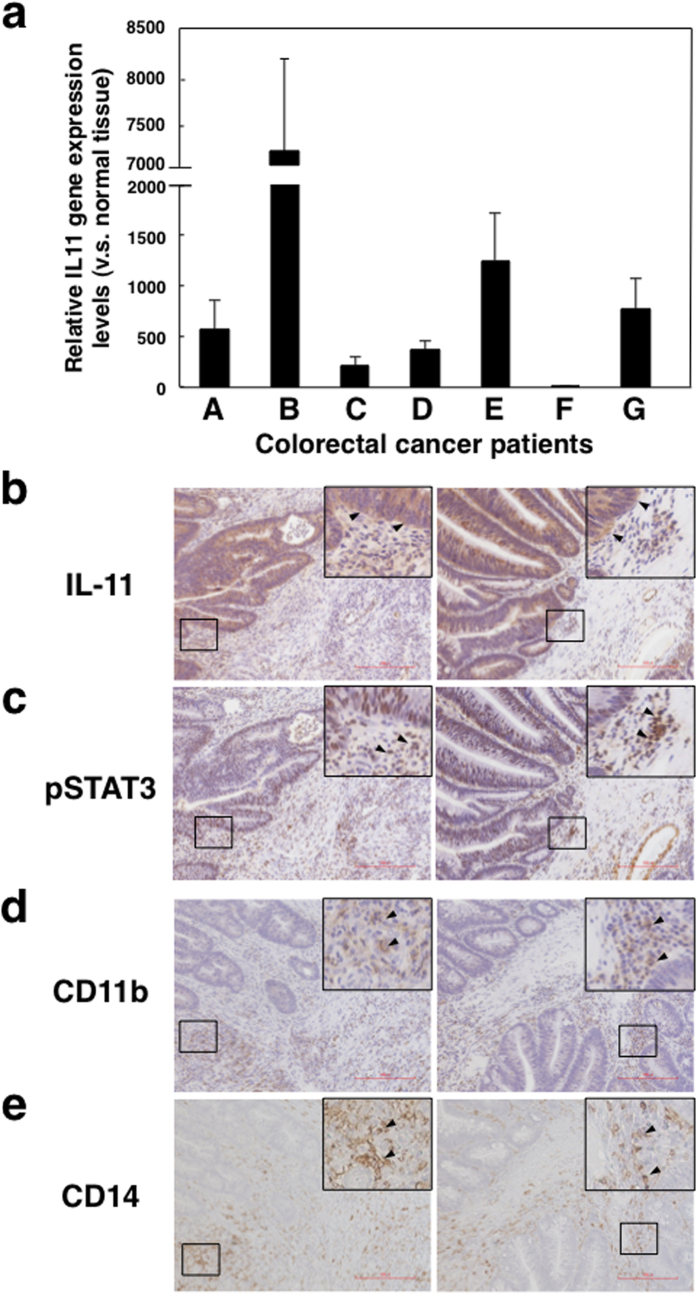 IL-11 and phosphorylated STAT3 expression in tumour microenvironments of colorectal cancer patients. ( a ) Normal and tumour tissues were collected from the specimens of seven colorectal cancer patients. Gene expression levels of IL-11 and GAPDH in normal and tumour tissues were determined by quantitative PCR. IL-11 gene expression in each sample was normalized to levels of GAPDH. Relative IL-11 gene expression levels of tumour tissues against normal tissues were calculated. The means and SDs of the data from three independent experiments are shown. * p