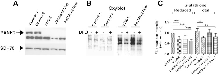 PKAN fibroblasts show altered oxidative status. (A) The determination of the PANK2 protein content in fibroblast soluble extracts. The arrows point to PANK2 mature peptide (47 kDa) and to SDH70 used as loading control. The other lower band, present in patients and controls, is a non-specific reaction of the antibody. (B) The fibroblasts were treated or not with 100 μM deferoxamine (DFO) for 18 h, and the levels of carbonylated proteins in soluble cell extracts were then analysed by Oxyblot. One representative of three independent experiments is shown. (C) Measurements of total and reduced glutathione content in fibroblasts evaluated using the specific fluorescent probe <t>ThiolTracker</t> Violet. The images were acquired by fluorescence microscopy, and the quantified signal, relative to controls, was plotted as the mean and standard deviation of three independent experiments in triplicate. **p