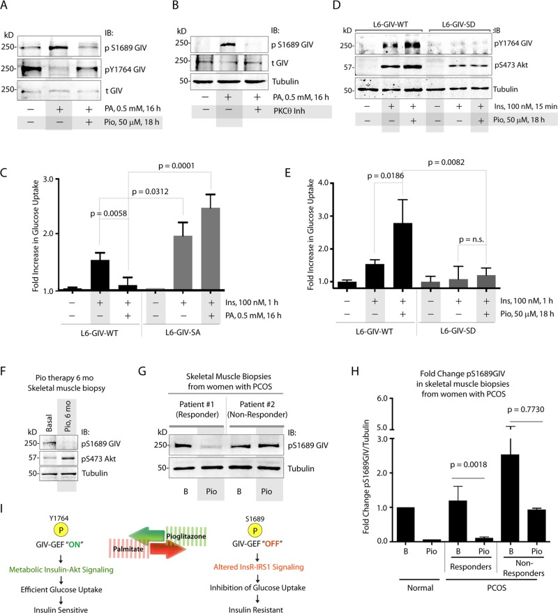 Phosphoinhibition of GIV-GEF by PKCθ is required for PA-induced IR and dephosphorylation of GIV-GEF is essential for the action of Pio. (A) Lysates of L6 myotubes treated (+) or not (−) with PA alone or a combination of PA and Pio were analyzed for phosphorylation of GIV at S1689 and Y1764 and total (t)GIV by IB. (B) Lysates of L6 myotubes treated (+) or not (−) with PA alone or a combination of PA and a pseudosubstrate PKCθ inhibitor were analyzed for phosphorylation of GIV at S1689 (pS1689 GIV), total (t)GIV, and tubulin by IB. (C) L6 myotubes stably expressing siRNA-resistant GIV-WT or GIV-SA were depleted of endogenous GIV by siRNA, treated with PA (+) or vehicle control (−), and subsequently analyzed for insulin-stimulated glucose uptake by fluorometric assay. Bar graph displays fold change in glucose uptake compared with starved controls ( y -axis). Error bars represent mean ± SD; n = 3. (D) L6 myotubes stably expressing siRNA-resistant GIV-WT or GIV-SD were depleted of endogenous GIV by siRNA, treated (+) or not (−) with Pio, and subsequently stimulated with insulin before lysis. Lysates were analyzed for activation of GIV (pY1764 GIV) and Akt (pS473Akt) by IB. (E) L6 myotubes stably expressing siRNA-resistant GIV-WT or GIV-SD were depleted of endogenous GIV by siRNA, treated (+) or not (−) with Pio, and subsequently analyzed for insulin-stimulated glucose uptake by fluorometric assay. Bar graph displays fold change compared with starved controls ( y -axis). Error bars represent mean ± SD; n = 3. (F) Equal aliquots of lysates of vastus lateralis muscle biopsies from obese T2DM subjects, obtained before (basal) or after 6 mo of Pio therapy, were analyzed for phosphoinhibition of GIV-GEF (pS1689 GIV) and phospho Akt (pS473 Akt) by IB. Representative samples are shown ( n = 8). (G and H) Equal aliquots of lysates of vastus lateralis muscle biopsies from patients with PCOS, obtained before (basal) and after Pio therapy, were analyzed for pS1689GIV by IB. (G) A re