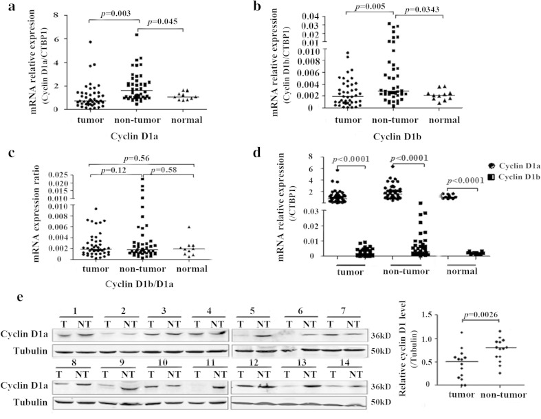 Expression levels of both cyclin D1 variants in paired HCC tissues. Total RNA were prepared from 45 paired HCC tissues and 11 normal liver tissues. The expression of both cyclin D1 variants was quantitated by qRT-PCR and normalized to CTBP1. Each sample was tested in triplicate in two separate experiments. a The comparison of cyclin D1a expression levels among the HCC tumor, adjacent nontumor and the normal liver tissues. ANOVA test was used to analyze the difference of cyclin D1a expression levels among these groups. b The expression of cyclin D1b was compared as in ( a ). c Ratio of cyclin D1b versus cyclin D1a was compared as in ( a ). d The difference between cyclin D1a and cyclin D1b expression in the HCC tissues, adjacent nontumor tissues or the normal liver tissues. ANOVA test was used to analyze the difference of cyclin D1 expression levels among these groups. e The expression of cyclin D1a protein in 14 paired HCC tissues was detected by Western blot assay. Tubulin was used as an internal loading control in each lane. T tumor tissue, NT nontumor tissue