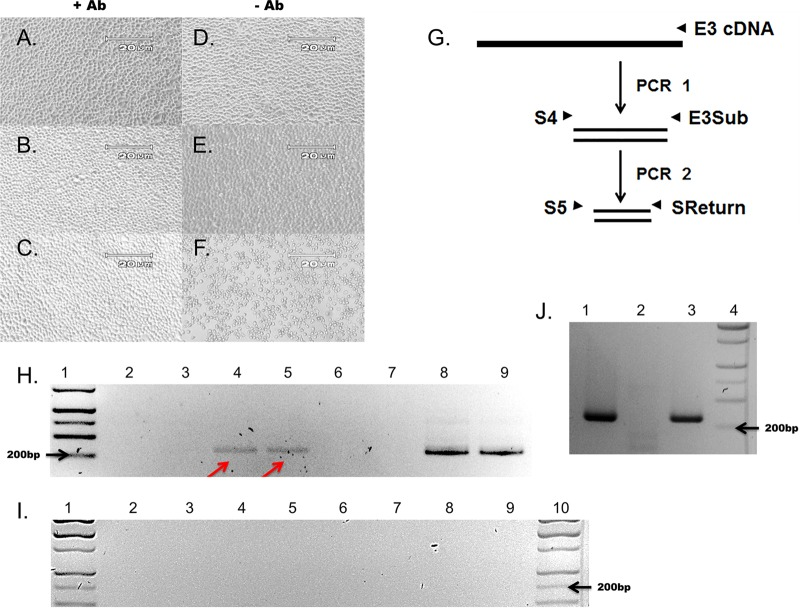 CVB3-CKO replicates without observable CPE and can be passaged from purified HeLa cell lysates and neutralized by anti-CVB3 neutralizing antibody. (A to F) HeLa cell monolayers at 5 days postinoculation with wt CVB3 (C, F) or CVB3-CKO (B, E) with anti-CVB3 neutralizing antibody (+ Ab) (A to C) or without antibody (− Ab) (D to E). Monolayers without virus inoculation (A, D) were also cultured. CVB3-CKO does not produce CPE after infection. (B) Neutralizing antibody prevents CPE with wt CVB3 (C) at 5 days postinoculation, whereas CPE occurs without neutralizing antibody (F). Magnifications, ×100. (G) Nested primers used to amplify the sequence in the 5′ NTR of CVB3 to detect viral RNA after inoculation of cell cultures. Primers are specific for a region of the 5′ NTR where deletions do not occur. (H) Total RNA was extracted from HeLa cell monolayers at 5 days postinoculation and assayed for the presence of viral RNA by nested PCR and gel electrophoresis. wt CVB3 was detected (lanes 8 and 9), as was noncytopathic CVB3-CKO (arrows, lanes 4 and 5). The absence of bands when neutralizing antibody was present in the cell cultures (lanes 2 and 3, CVB3-CKO; lanes 6 and 7, wt CVB3) demonstrates that the antibody effectively suppressed productive infection. Lane 1, molecular size markers. (I) All controls (lanes 2 to 4, no-cDNA PCR controls; lanes 5 to 7, no-RNA RT-PCR controls; lanes 8 to 10, tissue culture controls) were negative. Lanes 1 and 10, molecular size markers. (J) Additional virus preparations were tested to verify the observations made from panel H. CVB3-CKO can be passaged in cell culture (lane 3), whereas the T7 RNA transcript control cannot (lane 1), and CVB3-CKO can be neutralized with anti-CVB3 neutralizing antibody (lane 2). Lane 4, molecular size markers.
