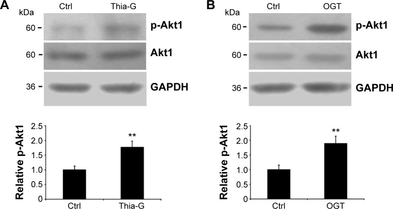 Up-regulation of O -GlcNAcylation increases Akt1 phosphorylation. Notes: The 8305C cells were treated with ( A ) 5 μM Thiamet-G (Thia-G) or ( B ) OGT overexpression for 24 hours. Cell lysates were prepared and used for Western blots for p-Akt1 (Ser473), Akt1, and GAPDH (loading control) with anti-p-Akt1 (Ser473), anti-Akt1, and anti-GAPDH antibodies. The blots of p-Akt1 were quantified by densitometry, and the results were expressed as a ratio relative to the values obtained in untreated control cells. Error bars represent the mean ± standard error of the mean of three independent experiments, ** P