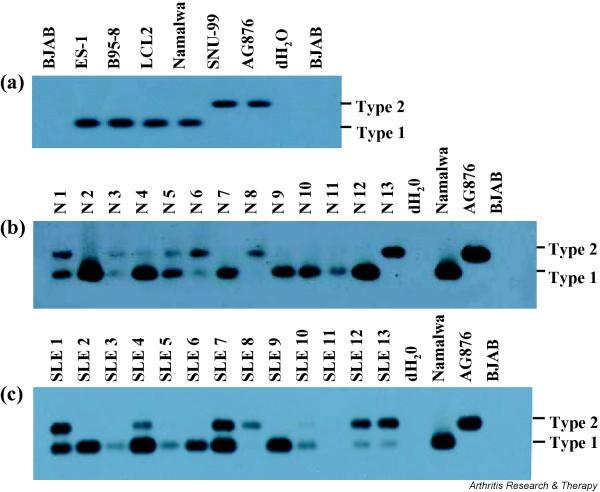 Epstein–Barr virus (EBV) typing of normal individuals and patients with systemic lupus erythematosus (SLE) in mouthwash samples. (a) PCR/Southern blot of the EBV nuclear antigen (EBNA)-3C encoding region for the cell lines carrying type 1 (ES-1, B95-8, LCL2, and Namalwa) and type 2 (SNU-99 and AG876) EBV. DNA extracted from each EBV infected cell line (5 ng) was subjected to EBNA-3C-specific PCR/Southern blot. PCR amplified products were transferred to a membrane and hybridized with an EBNA-3C probe common to both type 1 and type 2 EBV. The expected PCR product sizes were 153 bp for type 1 EBV and 246 bp for type 2 EBV. The EBV negative cell line BJAB and distilled water served as negative controls. (b,c) PCR/Southern blot of the EBNA-3C encoding region for the DNA from mouthwash samples. One 20th of the DNA isolated from mouthwash samples was used for each PCR reaction. Representative results obtained from normal controls (panel b) and SLE patients (panel c) are shown. Namalwa and AG876 were used as positive controls for type 1 and type 2 EBV, respectively. Distilled water (dH 2 0) and DNA isolated from BJAB were used as negative controls.