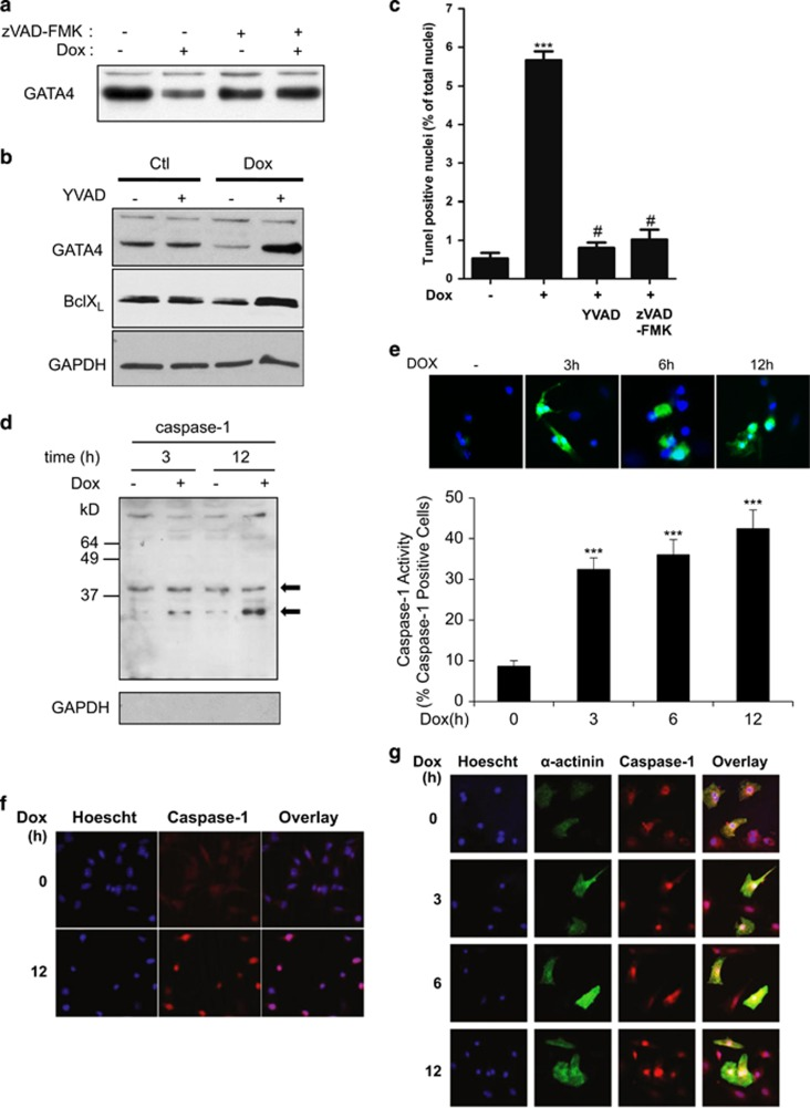 Dox-induced GATA4 depletion is caspase-1 dependent. ( a ) Pan-caspase inhibitor restored GATA4 expression. Cardiomyocytes were treated with Dox in the presence or absence of pan-caspase inhibitor (zVAD-FMK) for 12 h and analyzed by western blot. ( b ) Caspase-1 inhibitor prevented Dox-dependent GATA4 depletion. Cardiomyocytes were treated in the presence or absence of Dox with a caspase-1 inhibitor (YVAD-CHO). Western blots were carried out to detect GATA4 and its downstream target BclxL. GAPDH was used as a loading control. Note how changes in BclxL levels parallel those of GATA4. ( c ) Effect of caspase inhibition on cardiomyocyte apoptosis. Quantification of TUNEL assays in primary cardiomyocytes treated with the indicated inhibitors. The results are shown as mean±S.E.M. and analyzed by one-way ANOVA with Bonferroni post-test relative to the control (*) or to the Dox treatment alone ( # ). *** P ≤0.001, # P ≤0.001. Note how caspase-1 inhibition is as effective as the pan-caspase inhibitor at abrogating Dox-induced apoptosis. ( d – g ) Increased activation and nuclear localization of caspase-1 in Dox-treated cardiomyocytes. ( d ) Western blots of nuclear cardiomyocyte extracts. Notice how caspase-1 is activated (lower band) after 3 and 12 h of Dox treatment. GAPDH staining was used to control for cytoplasmic contamination. ( e ) Representative images (top panel) and quantification (lower panel) of a FAM-FLICA assay measuring caspase-1 activity in control and Dox-treated cardiomyocytes. Results are shown as percent of caspase-1-positive cells. *** P ≤0.0001. In the top panel, green is active caspase-1 and blue is Hoechst staining. ( f ) and ( g ) Immunofluorescence of HL1 cells ( f ) and primary cardiomyocytes ( g ) treated with Dox for the indicated time. Caspase-1 is labeled in red, α-actinin is labeled in green and Hoechst staining is labeled in blue