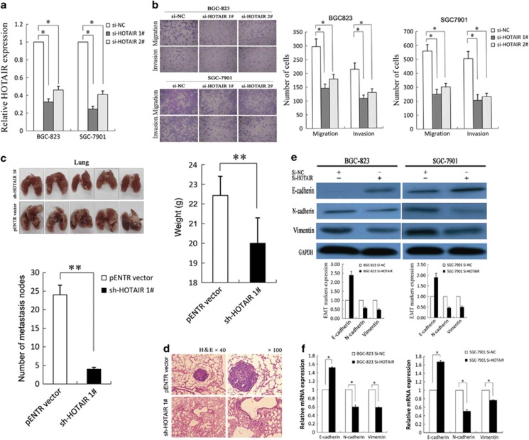 HOTAIR -promoted gastric cancer cell invasion, metastasis and EMT. ( a ) qRT-PCR was used to detect HOTAIR expression of BGC-823 and SGC-7901 cells with si-HOTAIRs. ( b ) Transwell assays were used to investigate the changes in migratory and invasive abilities of GC cells. ( c ) The lungs from mice in each experimental group with the numbers of tumor nodules on lung surfaces and weight were shown. ( d ) Visualization of the entire lung and HE-stained lung sections. ( e and f ) Western blotting and qRT-PCR were performed for analysis of E-cadherin, N-cadherin and vimentin in BGC-823 and SGC-7901 cells with si-HOTAIR. All experiments were performed in triplicate with three technical replicates. * P