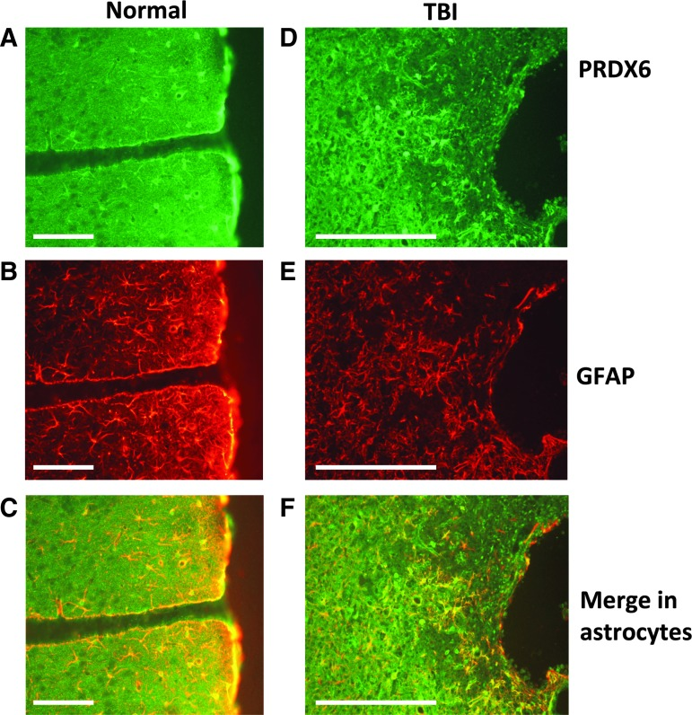 Peroxiredoxin 6 (PRDX6) is highly expressed in astrocytes in rat cerebral cortex and up-regulated following traumatic brain injury (TBI). Data show expression of PRDX6, glial fibrillary acidic protein (GFAP) and their co-localization in astrocytes in normal rat brain (A, B, C) and TBI rat brain (D, E, F) . PRDX6-expressing astrocytes in the penumbra were enlarged, and more abundant and intensely stained, compared with those more distant from the injury. Findings presented are representative of six independent analyses. PRDX6 expression in neurons and microglia was very low (not shown). Scale bar: 250 μm. Color image is available online at www.liebertpub.com/neu