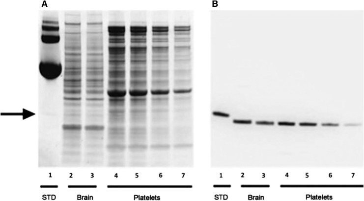 Western blot analysis of peroxiredoxin 6 (PRDX6) in extracts of human brain and platelets. Recombinant PRDX6 (200 ng, lane 1), human brain extract (20 μg, and 10 μg; lanes 2 and 3, respectively) and human platelet extract (20 μg, 10 μg, 5 μg, and 2.5 μg; lanes 4-7, respectively) were analyzed by silver staining (A) and western blot and probed with anti-PRDX6 antibody (B) . The recombinant PRDX6 standard exhibited a higher molecular weight, compared with tissue PRDX6 due to the presence of a histidine tag.