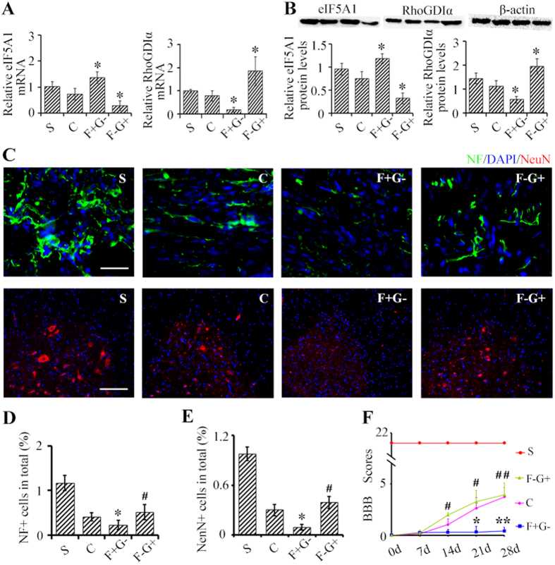 eIF5A1 upregulates RhoGDIα to promote neuroplasticity caudal to the SCT and functional recovery after SCT. ( A,B ) eIF5A1 and RhoGDIα mRNA ( A ) and protein levels ( B ) were measured 28 days after lentiviral injections (described below) and SCT with β-actin as an internal control. ( C ) Levels of NF (green) and number of NeuN + neurons (red) were measured 28 days after injection of lentiviral constructs caudal to SCT. Nuclei were visualized by DAPI (blue). Bar (NeuN + ), 100 μm. Bar (NF +), 30 μm. Quantifications are shown in part panels ( D–F ) BBB scores were used to assay hind limb motor function. The uninjured sham controls rats had BBB scores of 21 ± 0.00. BBB scores of rats in group F + G- where lower than the control but recovered in the F-G + group. Indeed, BBB scores were statistically indistinguishable to the control group. S, sham group; C, SCT, control lentiviral construct; F + G-, SCT, eIF5A1 overexpressing and shRNA-RhoGDIα expressing lentiviral constructs; F-G + , SCT, shRNA-eIF5A1 expressing and RhoGDIα overexpressing lentiviral constructs. Data were presented as mean ± SEM. *P