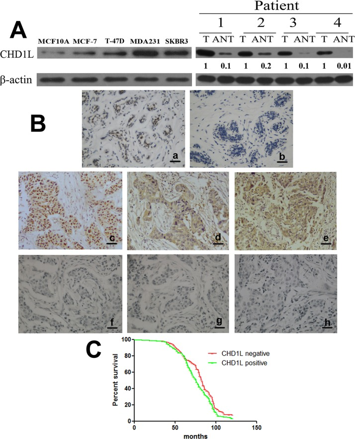 CHD1L is specifically upregulated in human breast cancer cell lines and tissues. (A) Left, Expression of CHD1L protein in cultured human normal mammary epithelial cell line (MCF10A) and various breast cancer cell lines (MDA-MB-231, T-47D, SK-BR-3, and MCF-7). Right, Expression of CHD1L protein in paired breast cancer tissues (T) and adjacent non-tumor tissues (ANT), with each pair obtained from the same patient. β-Actin was used as a loading control. Quantification of relative protein levels is shown below the blots. Results are representative of at least three repeated experiments. (B) Positive expression of CHD1L protein in normal mammary glands (a), negative expression of CHD1L protein in normal mammary glands (b), positive expression of CHD1L protein in carcinoma with lymph node metastasis (c), positive expression of MMP-2 protein in carcinoma with positive expression of CHD1L (d), positive expression of MMP-9 protein in carcinoma with positive expression of CHD1L (e), negative expression of CHD1L protein in carcinoma without lymph node metastasis (f), negative expression of MMP-2 protein in carcinoma with negative expression of CHD1L (g), and negative expression of MMP-9 protein in carcinoma with negative expression of CHD1L (h) were examined using immunohistochemical staining. Scale bar: 20 μm. (C) Kaplan–Meier analysis was performed between the CHD1L level and overall survival of breast cancer patients with positive (n = 112) and low (n = 156) CHD1L expression.