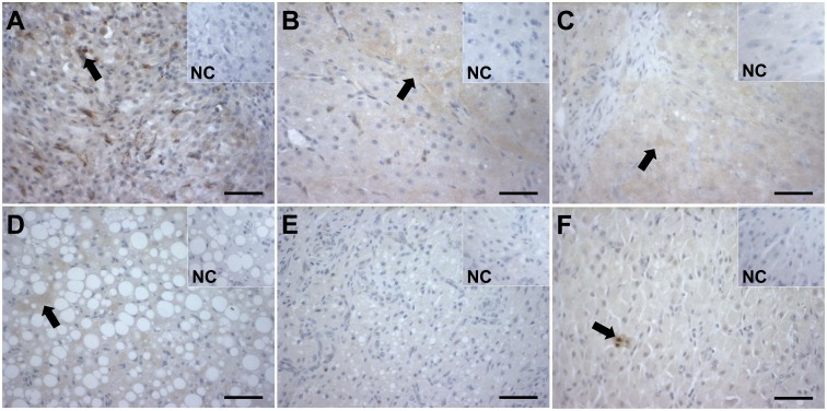 Immunohistochemical localization of CASP3 and TNF proteins in CL of the domestic cat. Active CASP3 was localized in luteal cells at the stages of: CL formation (A), development/maintenance (B), early regression (C) and late regression (D). The protein expression was consistently present throughout the CL life span, except for CA (E). TNF protein expression was identified in non-steroidogenic cells, presumably macrophages, but not in luteal cells (F). Arrows indicate positive staining. NC: negative control. Scale bar– 50 μm.
