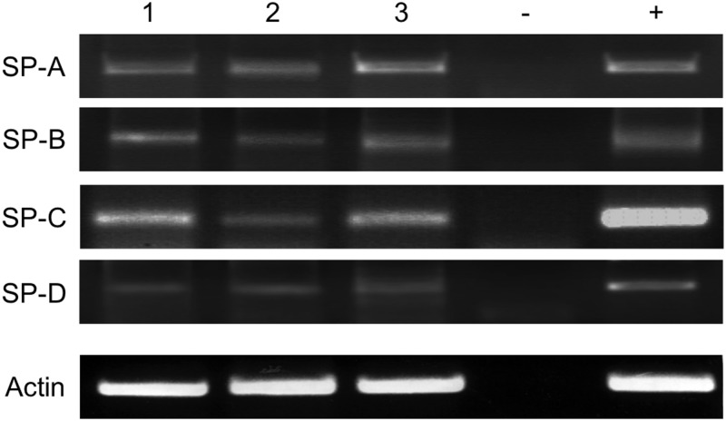 Visualization of RT-PCR amplification products from the following samples: tissue from different patients, (1) healthy testis 1; (2) healthy testis 2; (3) lung; (-) negative control (water); (+) positive control, plasmid DNA carrying the full-length gene for the respective surfactant proteins. All RT-PCR analyses show cDNA amplification for the relevant surfactant protein in comparison to ß-actin (ß-actin).