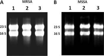 Gel electrophoresis of total RNA that was obtained from sessile cells with sheared whole-cell lysis coupled to the RNeasy Mini Kit. Lanes 1 , 2 , and 3 represent three independent experiments using the methicillin-resistant S. aureus (MRSA) isolate BMB9393 ( A ) and the methicillin-susceptible S. aureus (MSSA) isolate HC474 ( B ).