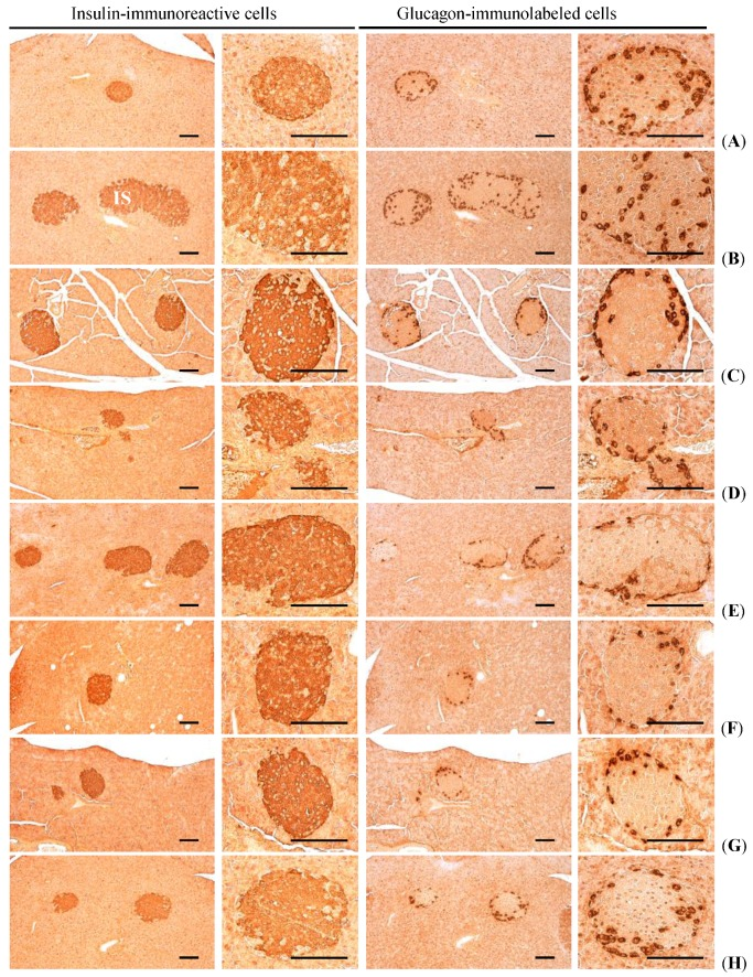Representative histological images of the insulin- and glucagon-immunoreactive cells in the pancreas, taken from NFD or HFD supplied mice. ( A ) Intact control: Normal pellet diet supplied vehicle control mice; 10 mL/kg of distilled water oral administered mice; ( B ) HFD (vehicle) control: 10 mL/kg of distilled water oral administered mice with HFD supply; ( C ) Simvastatin: 10 mg/kg of simvastatin oral administered mice with HFD supply; ( D ) Metformin: 250 mg/kg of metformin oral administered mice with HFD supply; ( E ) GT400: 400 mg/kg of GT oral administered mice with HFD supply; ( F ) fGT400: 400 mg/kg of fGT oral administered mice with HFD supply; ( G ) fGT200: 200 mg/kg of fGT oral administered mice with HFD supply; ( H ) fGT100: 100 mg/kg of fGT oral administered mice with HFD supply. NFD, normal fat pellet diet; HFD, high fat diet; GT, green tea extracts; fGT, Aquilariae lignum -fermented green tea extracts. All immunostained by avidin-biotin-peroxidase complex. Scale bars = 80 µm.